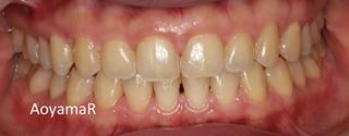 上顎右側の近心位による上顎前歯の唇側傾斜