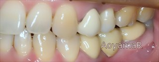 上下歯列の狭窄および下顎前歯の挺出による上顎前歯の唇側傾斜