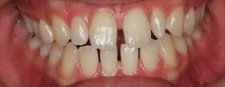 上顎側切歯矮小歯による上下前歯のスペースの発現