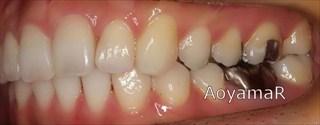 上顎右側側切歯失活歯 / 下顎側切歯1本欠損による上顎歯列の叢生