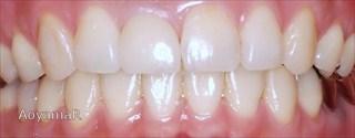 上顎右側中切歯先天欠如による前歯部の空隙歯列