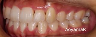 下顎歯列近心位、下顎前歯1本欠損による上下顎歯列の不調和