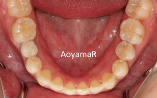 下顎右側第二小臼歯先天性欠如 / 上顎歯列の重度叢生
