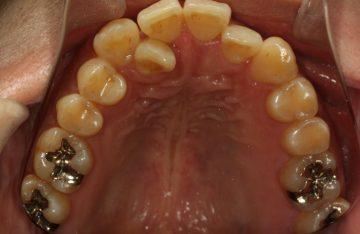 側切歯の舌側転位