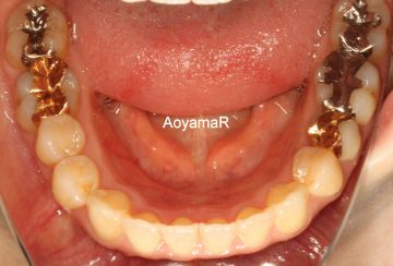 前歯のオープンバイト