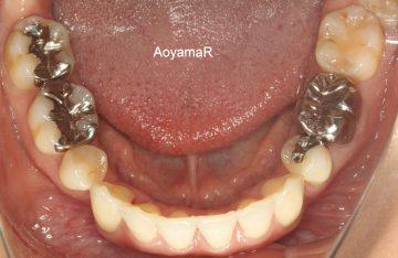 第一小臼歯4本抜歯ケース