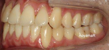 重度の歯肉退縮を伴う叢生