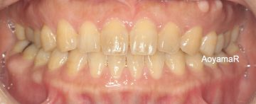 前歯にスペースがあるケース