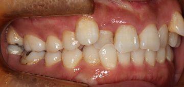 上顎両側犬歯低位唇側転位