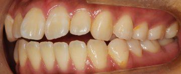 前歯部のオープンバイト