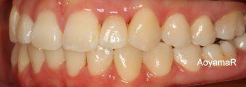 上顎左側側切歯先天性欠如