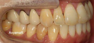 上下歯列の狭窄による開咬