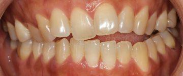 顎偏位を伴う開口