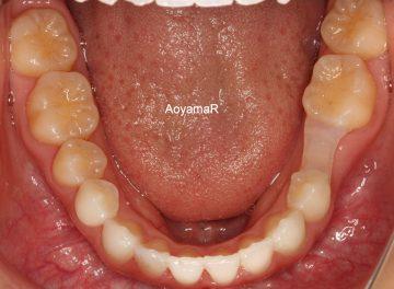 乳臼歯の残存によるオープンバイト