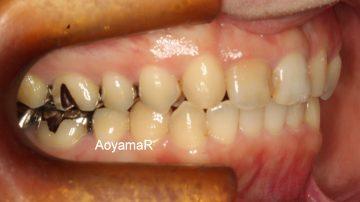 上顎両側側切歯が矮小歯による空隙歯列