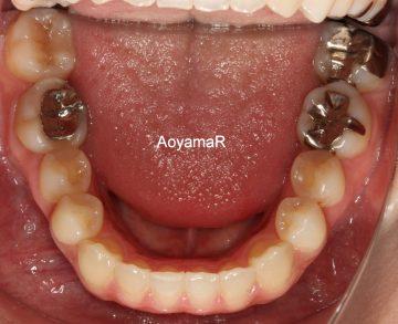 上顎歯列狭窄による開口