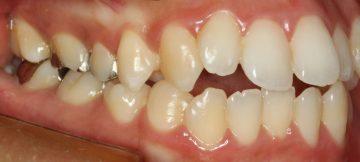 下顎側切歯先天性欠如を伴う上下顎前突