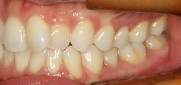歯列の狭窄によるそう生