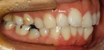 小臼歯片側抜歯による改善