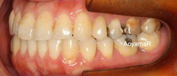 下顎左側大臼歯を抜歯したケース