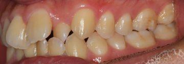 上顎前歯捻転歯の治療