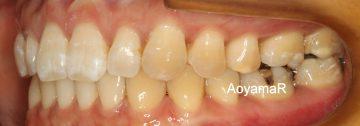 前歯部に空隙があり、咬み合わせが深いケース