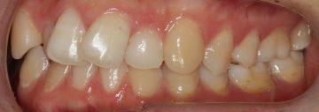 下顎前歯2本の先天欠如