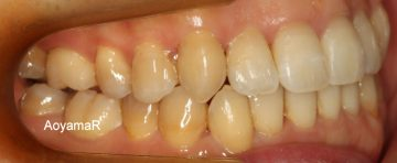 重度の叢生を非抜歯で治したケース