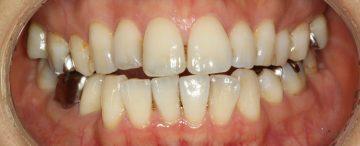 ワイヤーによる抜歯治療の後戻り治療