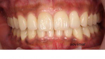 上下歯列アーチ非対称を伴う叢生