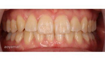 側切歯の反対被蓋