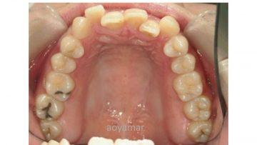 上下顎狭窄による前歯部叢生