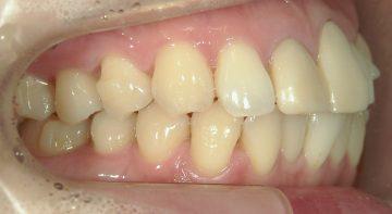 下顎軽度そう生(上顎前歯補綴前処置)
