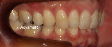 下顎側切歯2本先欠によるディープバイト