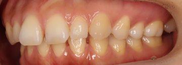 前歯にスペースがあるケース2