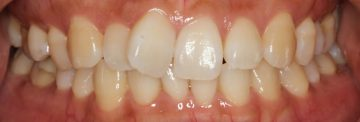 上顎前歯の捻転