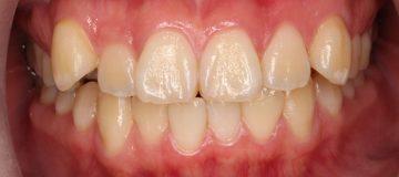 前歯のガタガタ