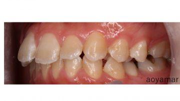 小臼歯交叉咬合を含む叢生