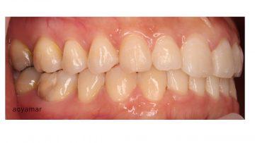 中等度の前歯部叢生