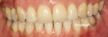 乳臼歯晩期残存による上下顎前突