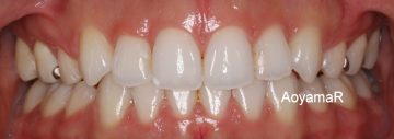 小臼歯4本抜歯によるオープンバイト治療