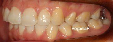 上下小臼歯4本抜歯による治療
