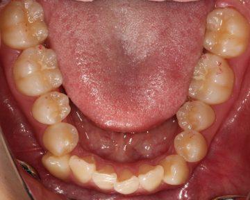 下顎の左側偏位を伴う重度のそう生