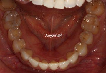 大臼歯関係Ⅱ級による上顎前突