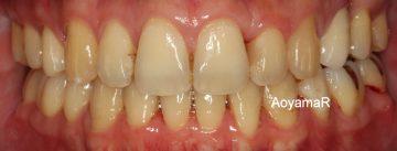 上顎左側臼歯晩期残存