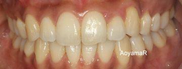 過剰歯によるそう生