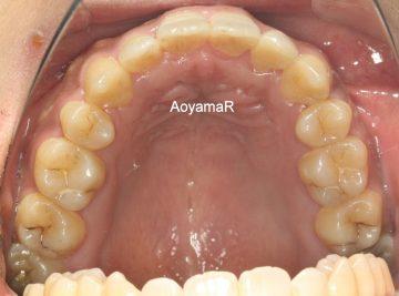 骨格的3級、小臼歯4本抜歯ケース