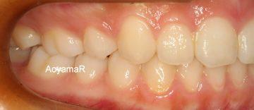 上顎小臼歯2本抜歯による治療