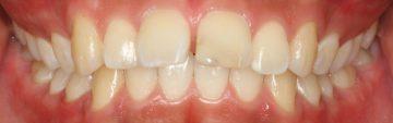 上顎遠心移動による非抜歯治療