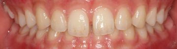 上顎前歯てい出によるディープバイト